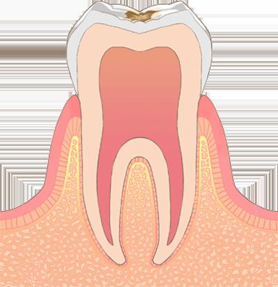 C1 (初期の虫歯)