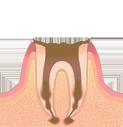 C4 (末期の虫歯)