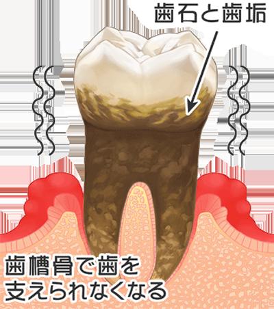 末期の歯周病