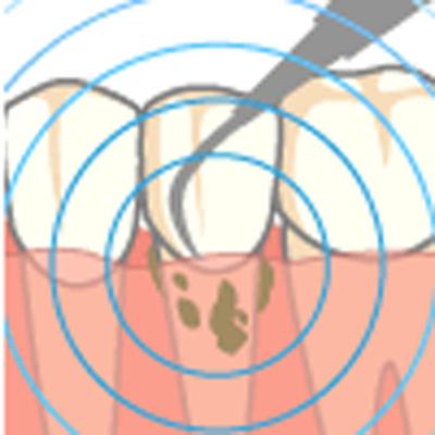 エアスケーラー、又は超音波による歯石除去