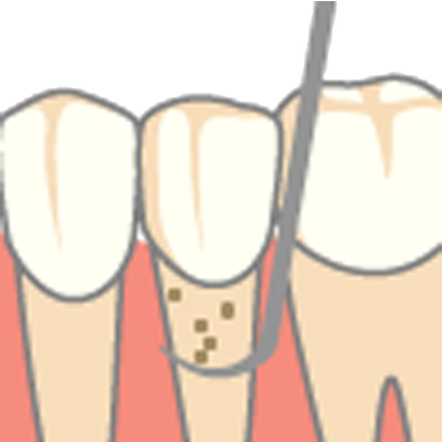 深い部分の歯石除去