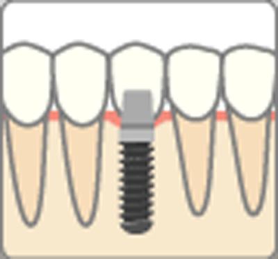 インプラントに被せる歯を作成・装着
