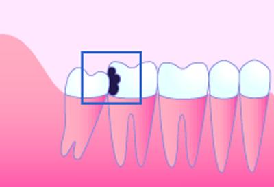 親知らずの前の歯が虫歯や歯周病になる