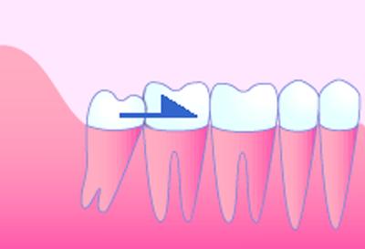 歯並びが悪くなる