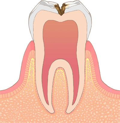 C2 (中期の虫歯)