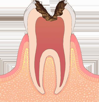 C3 (後期の虫歯)