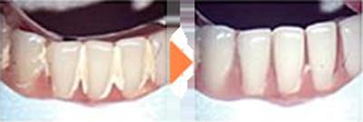 当院では義歯の徹底洗浄を行っています